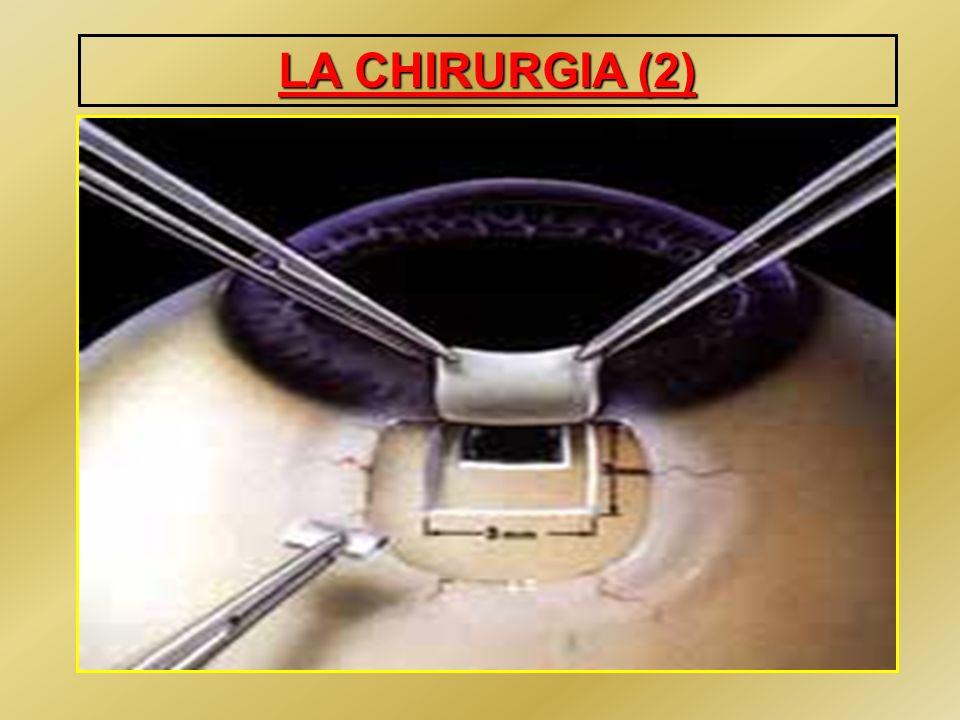 IMPIANTI VALVOLARI Tecniche riservate a casi di glaucoma refrattario con insuccesso di altre procedure Possono essere impiantati in camera anteriore od in pars plana Gravi complicanze legate alla ipotonia ed al danno corneale