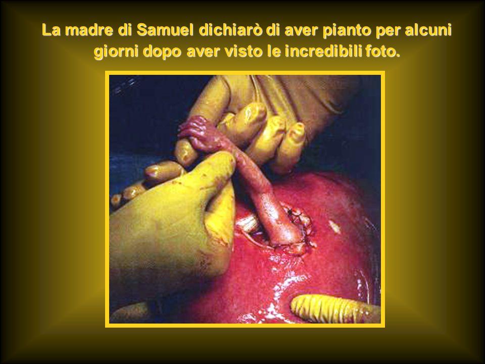 La madre di Samuel dichiarò di aver pianto per alcuni giorni dopo aver visto le incredibili foto.