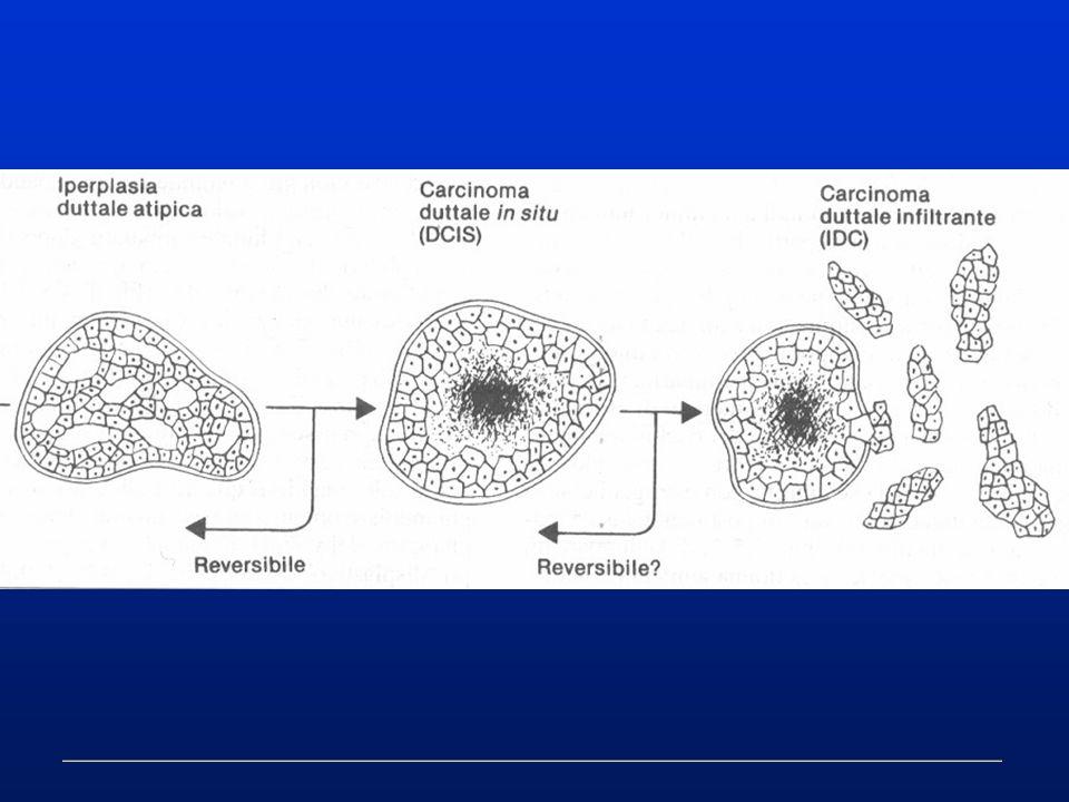 Eradicato lassunto che la displasia rappresenta un precursore obbligato del carcinoma non si deve tuttavia cadere nelleccesso opposto di una sua categorica negazione RAPPORTI TRA DISPLASIA E CARCINOMA DELLA MAMMELLA