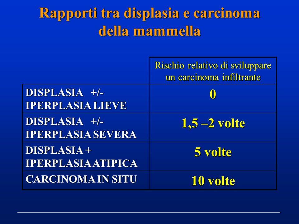 Rapporti tra displasia e carcinoma della mammella Rischio relativo di sviluppare un carcinoma infiltrante DISPLASIA +/- IPERPLASIA LIEVE 0 DISPLASIA +