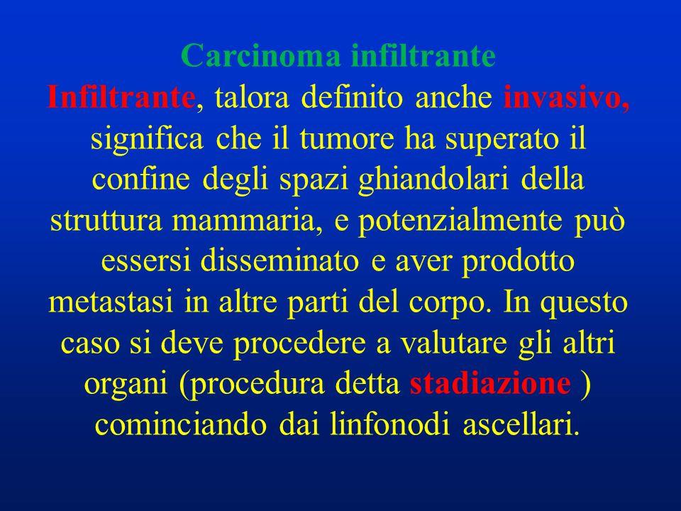Carcinoma infiltrante Infiltrante, talora definito anche invasivo, significa che il tumore ha superato il confine degli spazi ghiandolari della strutt