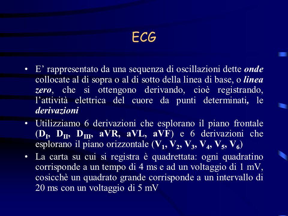 Segni ECG-grafici di cardiopatia ischemica Ischemia Il ritardo di ripolarizzazione dellendocardio, che maggiormente soffre di alterazioni del contenuto di ossigeno e ioniche, perché soggetto maggiormente alla pressione intraventricolare sinistra, inverte la ripolarizzazione, che va dallepicardio allendocardio, negativizzando la T nelle derivazioni dirette: la T si oppone quindi al QRS e diventa negativa, appuntita e simmetrica.