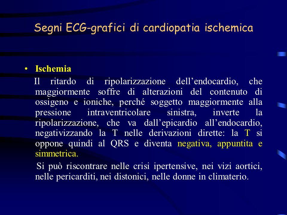 Segni ECG-grafici di cardiopatia ischemica Ischemia Il ritardo di ripolarizzazione dellendocardio, che maggiormente soffre di alterazioni del contenut
