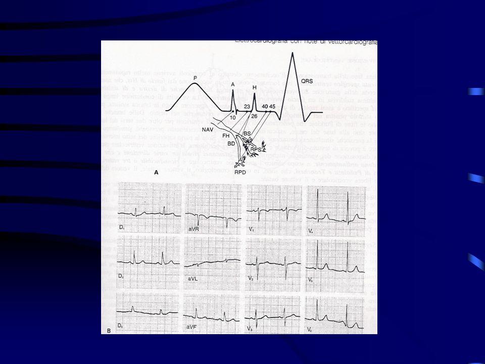 Dolore coronarico (anginoso) Sede: retrosternale, talora epigastrica Irradiazione: spalla sinistra, lato ulnare del braccio sinistro, collo Qualità: costrittivo (sensazione di peso, compressione, oppressione, talora bruciore) Durata: variabile in funzione dellentità dellischemia coronarica
