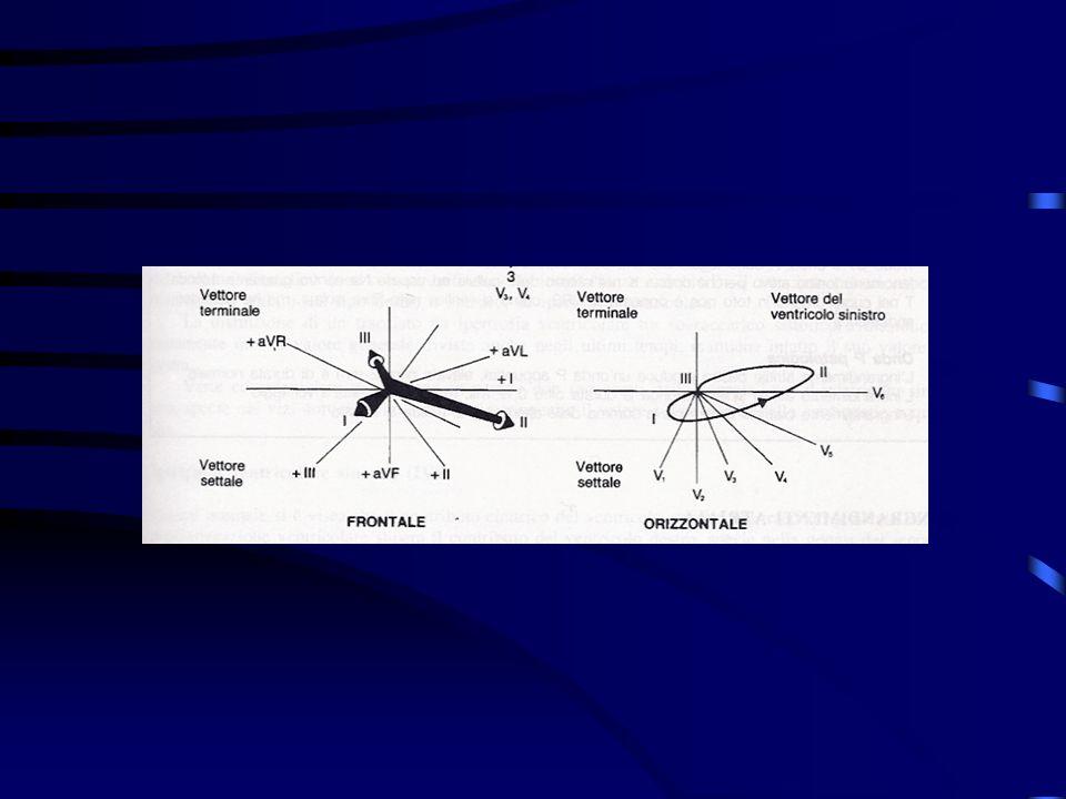 Ipossia Danno metabolico Deficit contrattile Alterazione elettrica Dolore anginoso