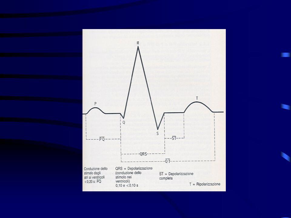 Classificazione della cardiopatia ischemica Angina da sforzo (stabile) Il dolore toracico si può manifestare durante sforzo (esercizio fisico, attività sessuale), emozioni (stress, paura) e può essere precipitato dallesposizione al freddo o dal pasto.