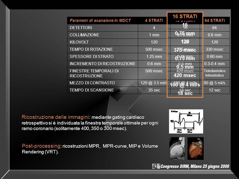 Parametri di scansione in MDCT4 STRATI16 STRATI64 STRATI DETETTORI41664 COLLIMAZIONE1 mm0.75 mm0.6 mm KILOVOLT120 TEMPO DI ROTAZIONE500 msec375 msec33