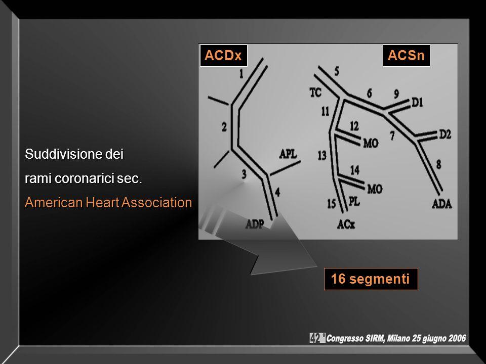 ACDxACSn Suddivisione dei rami coronarici sec. American Heart Association 16 segmenti