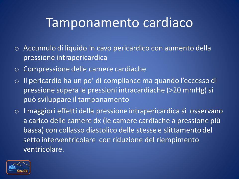 o Accumulo di liquido in cavo pericardico con aumento della pressione intrapericardica o Compressione delle camere cardiache o Il pericardio ha un po