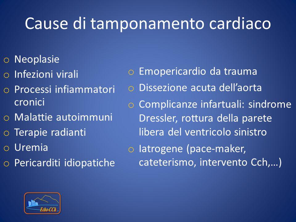 Cause di tamponamento cardiaco o Emopericardio da trauma o Dissezione acuta dellaorta o Complicanze infartuali: sindrome Dressler, rottura della paret