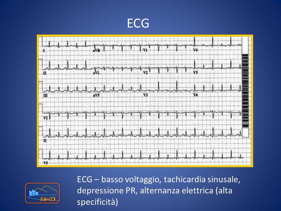 ECG ECG – basso voltaggio, tachicardia sinusale, depressione PR, alternanza elettrica (alta specificità)