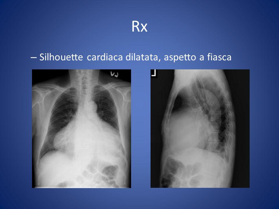 Rx – Silhouette cardiaca dilatata, aspetto a fiasca