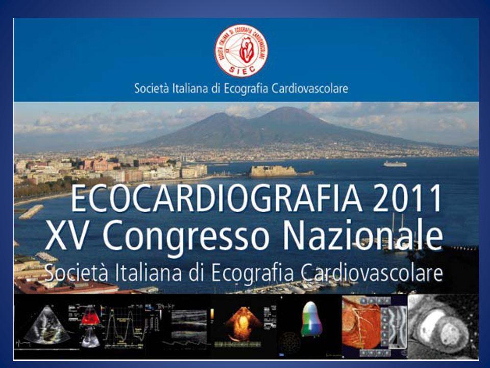 Ecocardiografia nel versamento pericardico Identifica il motivo della compressione pericardica.
