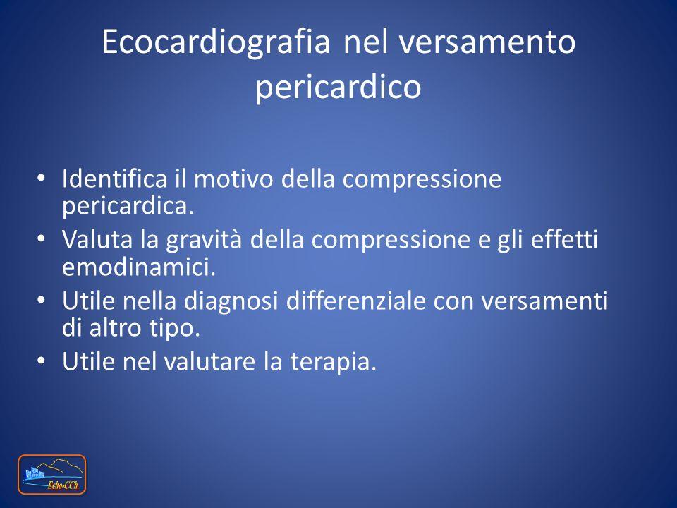 Ecocardiografia nel versamento pericardico Identifica il motivo della compressione pericardica. Valuta la gravità della compressione e gli effetti emo