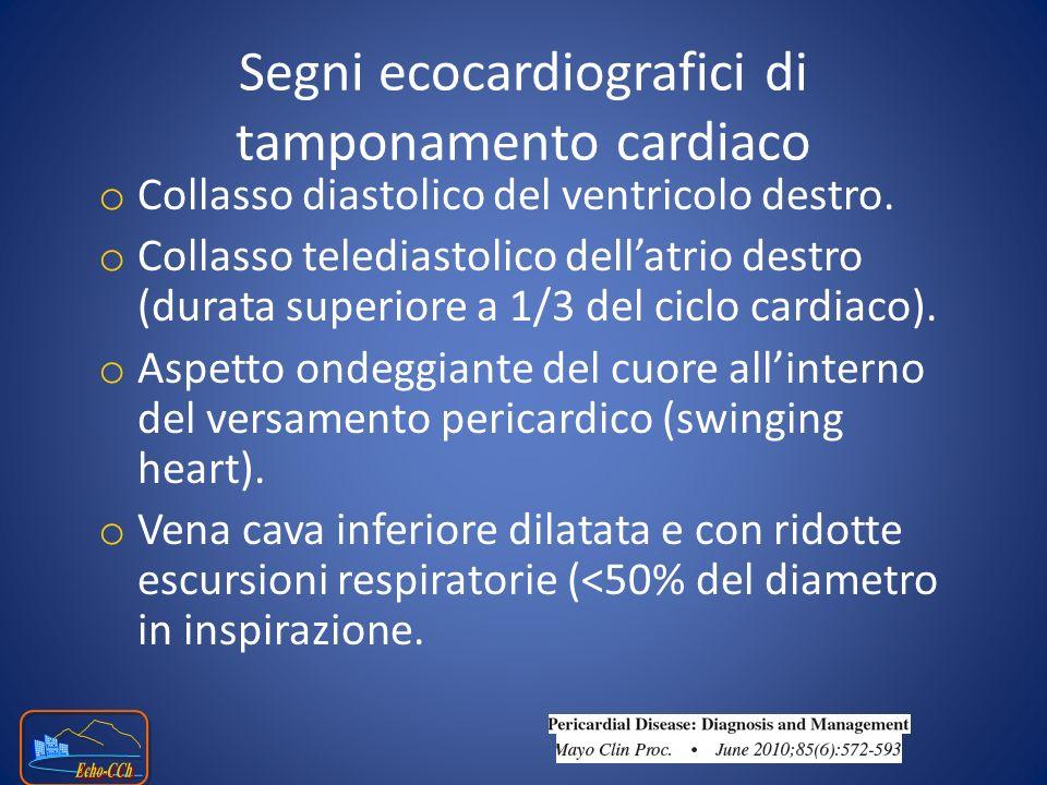 o Collasso diastolico del ventricolo destro. o Collasso telediastolico dellatrio destro (durata superiore a 1/3 del ciclo cardiaco). o Aspetto ondeggi