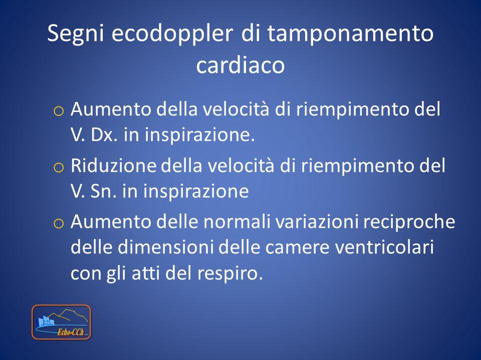 Segni ecodoppler di tamponamento cardiaco o Aumento della velocità di riempimento del V. Dx. in inspirazione. o Riduzione della velocità di riempiment