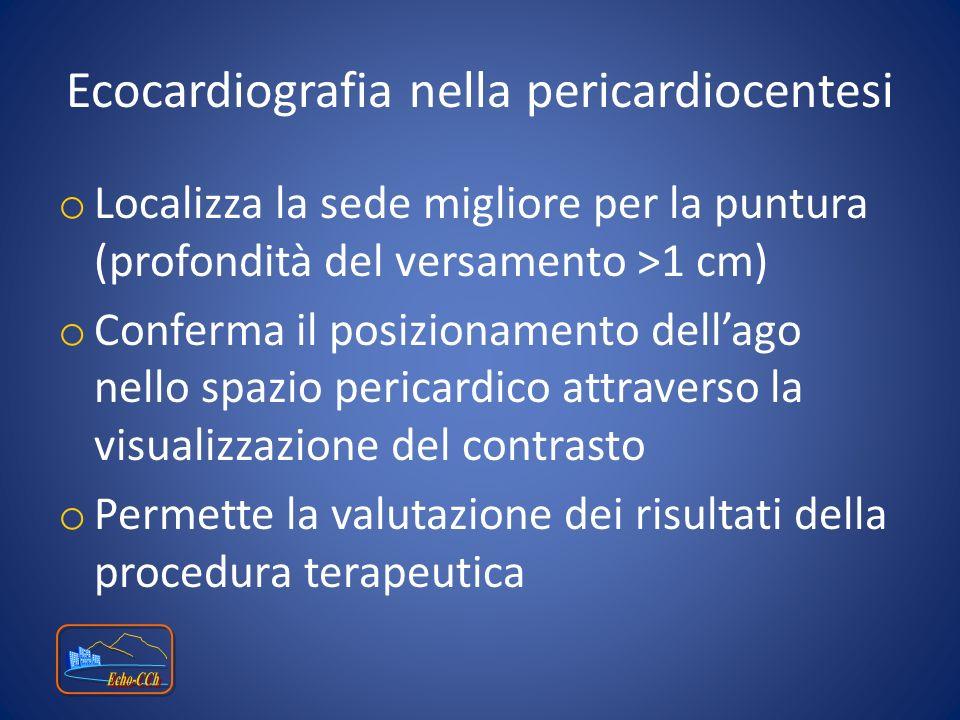 Ecocardiografia nella pericardiocentesi o Localizza la sede migliore per la puntura (profondità del versamento >1 cm) o Conferma il posizionamento del