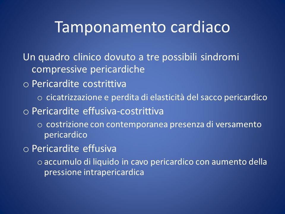 Sintomi e segni clinici di tamponamento cardiaco o Dispnea, prevalentemente tachi-ortopnea o Pressione venosa sistemica elevata, giugulari turgide * o Ipotensione arteriosa * o Polso paradosso o Tachicardia o Toni cardiaci parafonici*