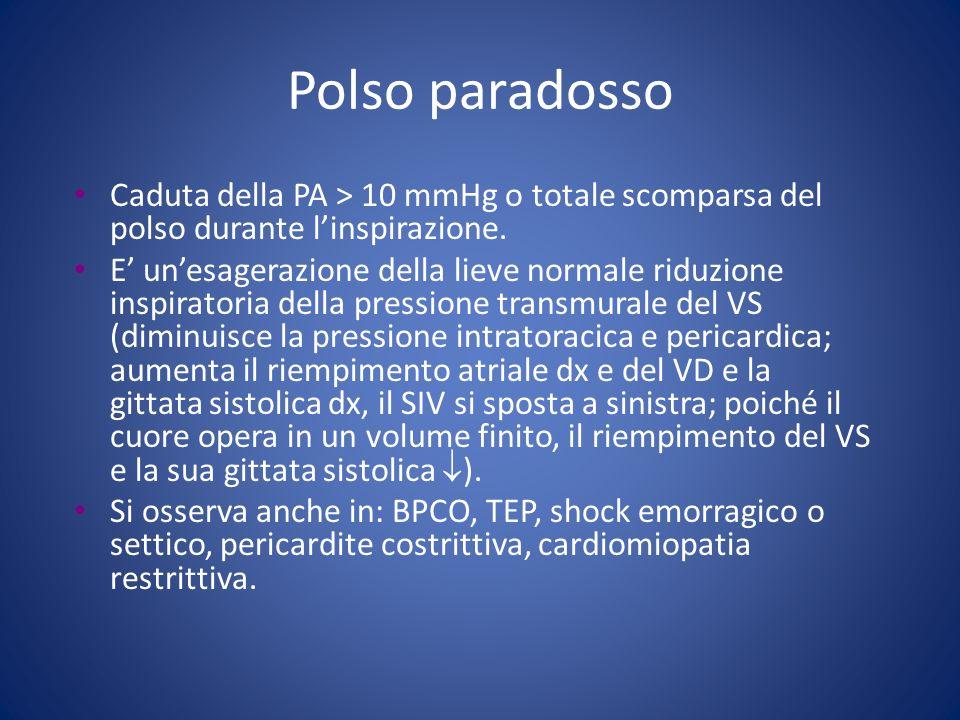 Polso paradosso Caduta della PA > 10 mmHg o totale scomparsa del polso durante linspirazione. E unesagerazione della lieve normale riduzione inspirato