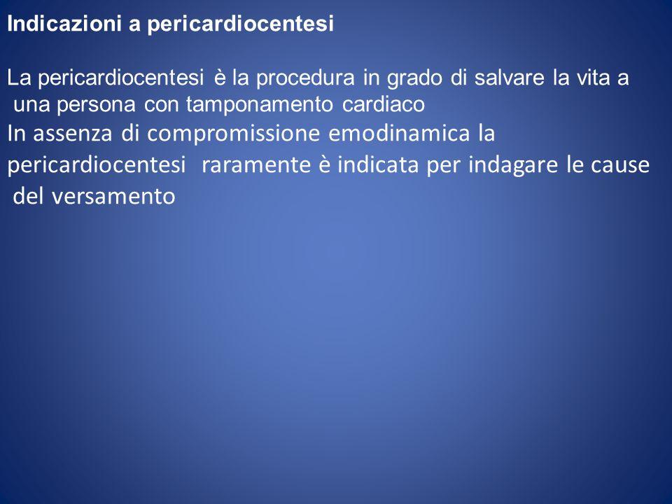 Indicazioni a pericardiocentesi La pericardiocentesi è la procedura in grado di salvare la vita a una persona con tamponamento cardiaco In assenza di