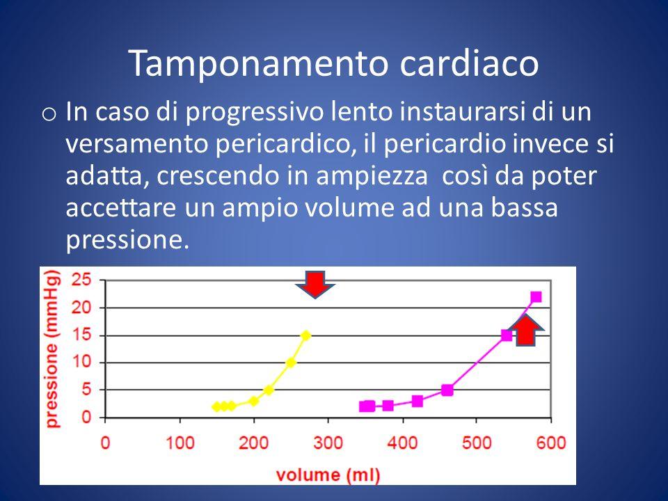 o Accumulo di liquido in cavo pericardico con aumento della pressione intrapericardica o Compressione delle camere cardiache o Il pericardio ha un po di compliance ma quando leccesso di pressione supera le pressioni intracardiache (>20 mmHg) si può sviluppare il tamponamento o I maggiori effetti della pressione intrapericardica si osservano a carico delle camere dx (le camere cardiache a pressione più bassa) con collasso diastolico delle stesse e slittamento del setto interventricolare con riduzione del riempimento ventricolare.