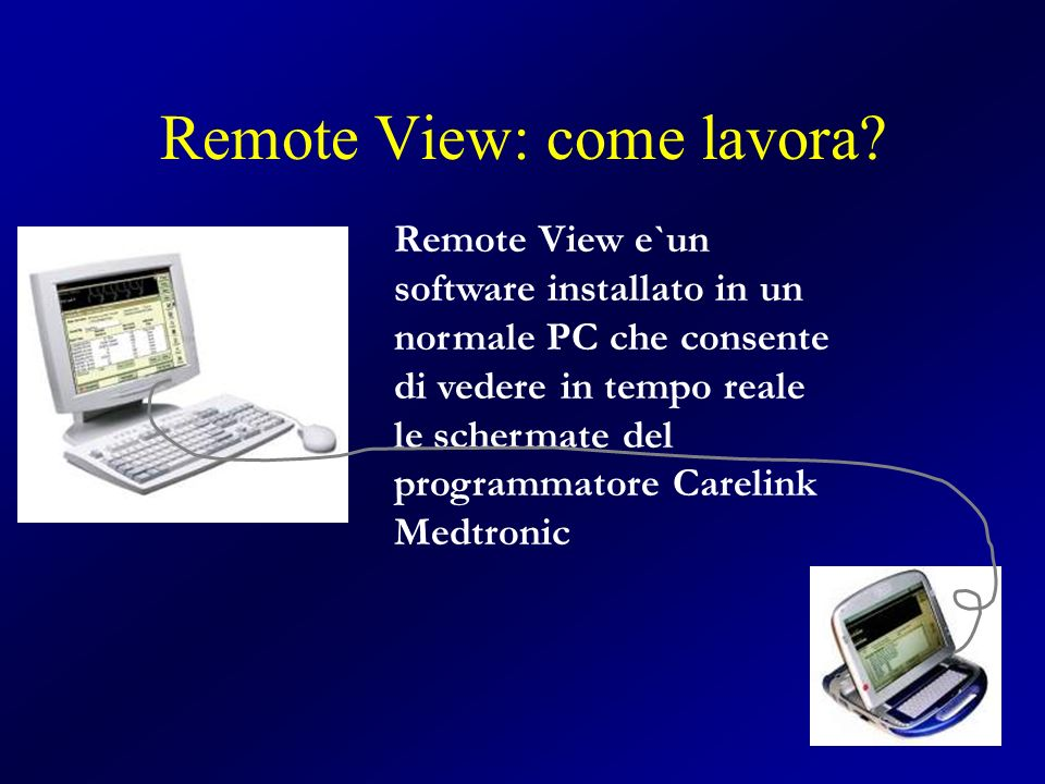 Remote View: come lavora.