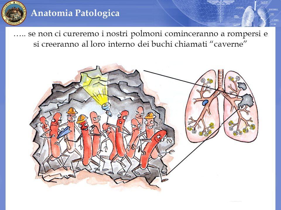 ….. se non ci cureremo i nostri polmoni cominceranno a rompersi e si creeranno al loro interno dei buchi chiamati caverne Anatomia Patologica