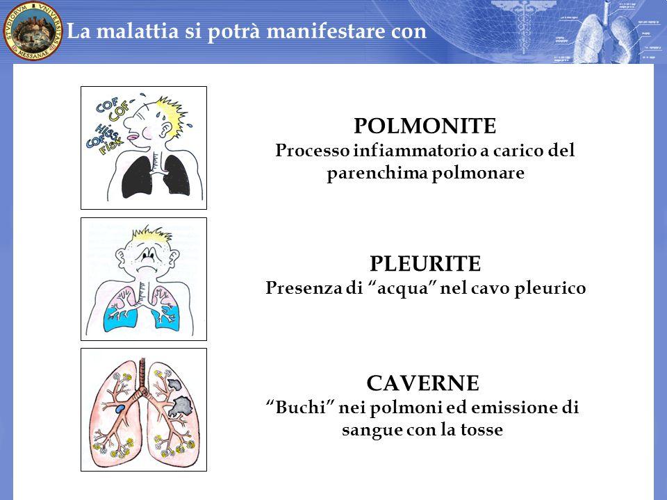 La malattia si potrà manifestare con PLEURITE Presenza di acqua nel cavo pleurico CAVERNE Buchi nei polmoni ed emissione di sangue con la tosse POLMON