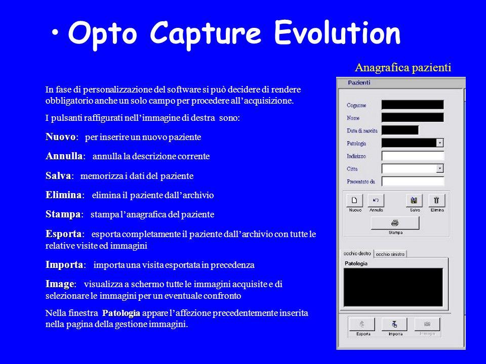 Anagrafica pazienti Opto Capture Evolution In fase di personalizzazione del software si può decidere di rendere obbligatorio anche un solo campo per procedere allacquisizione.