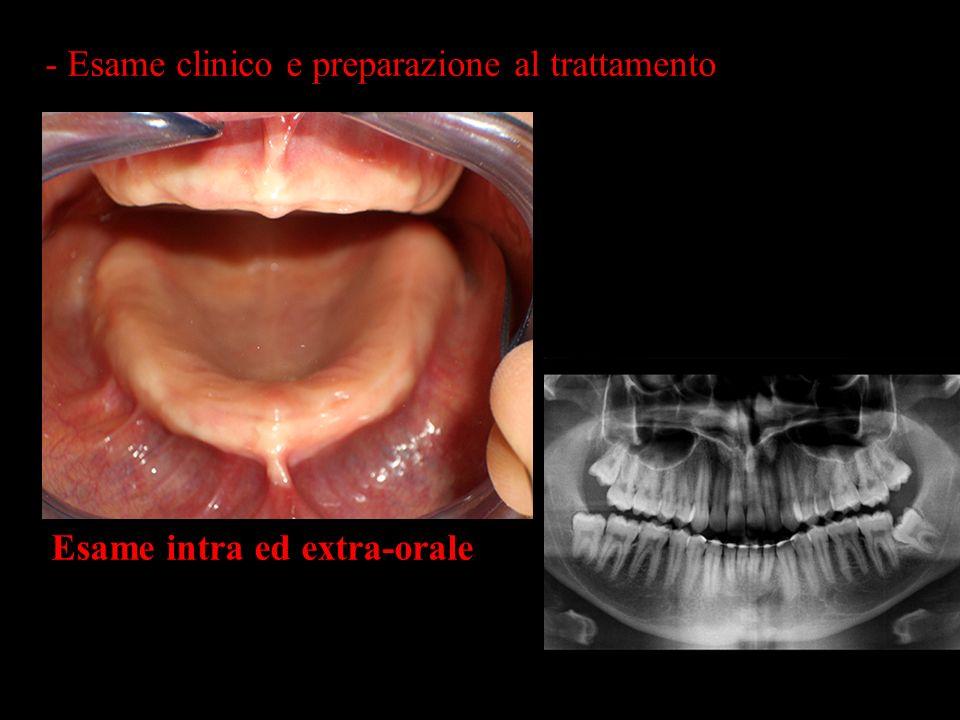 - Esame clinico e preparazione al trattamento Esame intra ed extra-orale