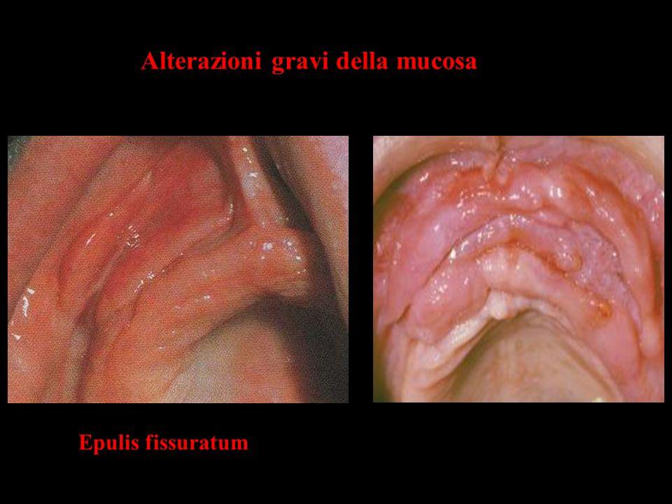 Alterazioni gravi della mucosa Epulis fissuratum