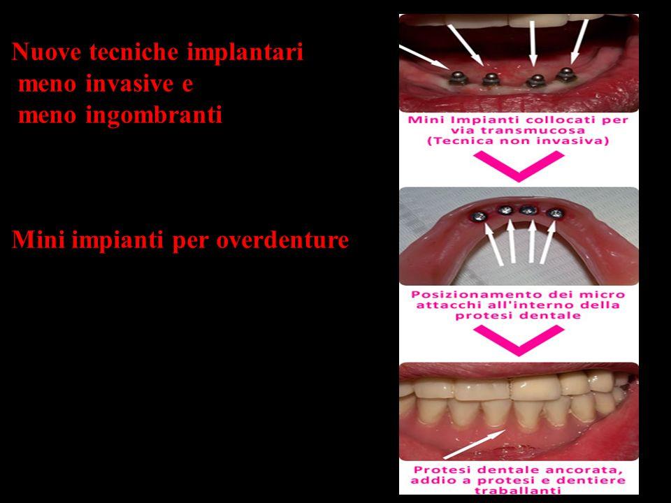 Nuove tecniche implantari meno invasive e meno ingombranti Mini impianti per overdenture