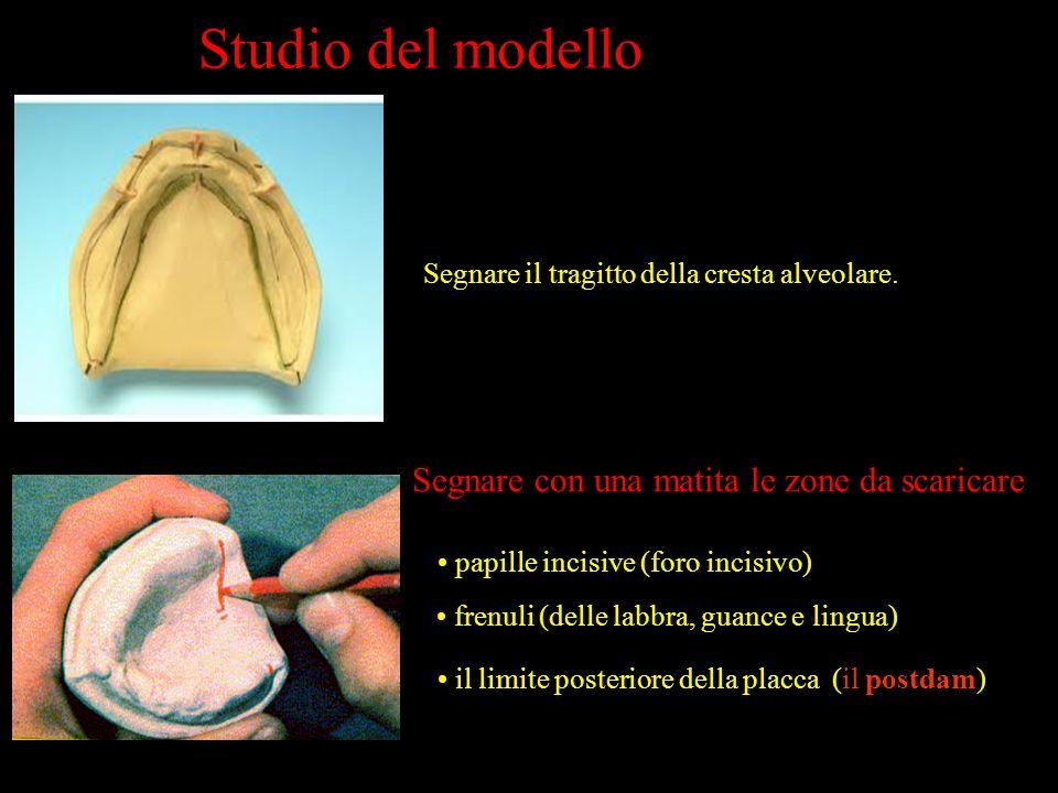 Studio del modello Segnare il tragitto della cresta alveolare. Segnare con una matita le zone da scaricare il limite posteriore della placca (il postd