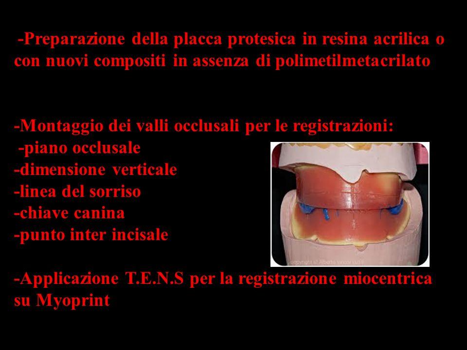 - -Preparazione della placca protesica in resina acrilica o con nuovi compositi in assenza di polimetilmetacrilato -Montaggio dei valli occlusali per