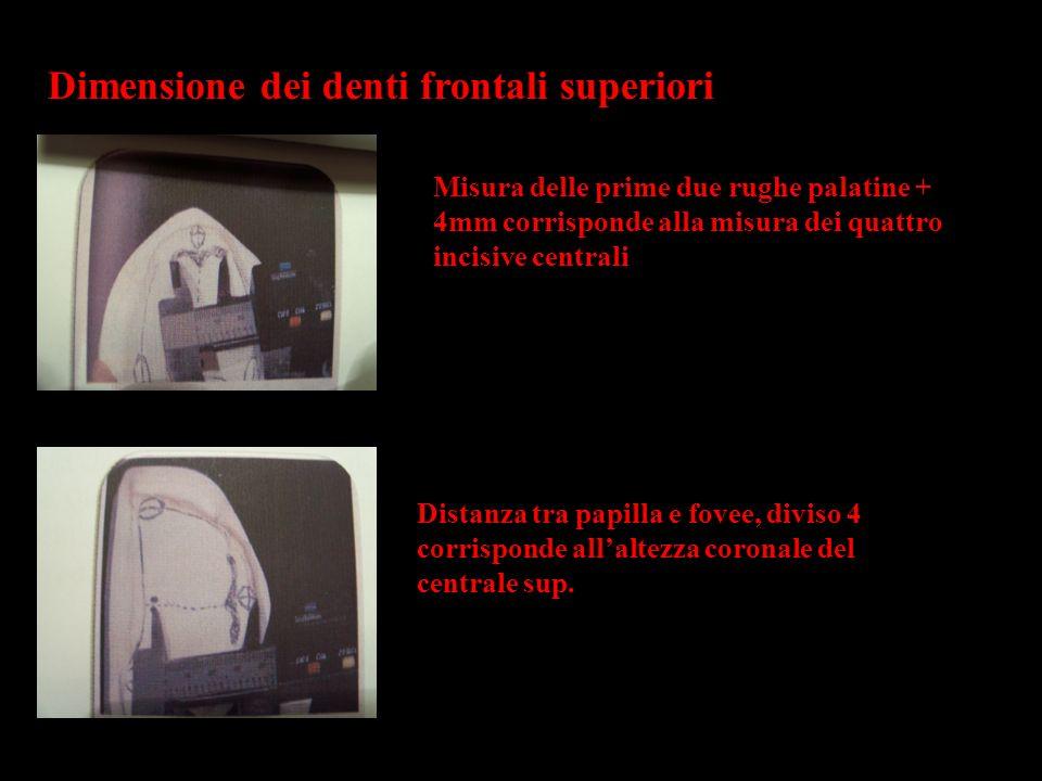 Dimensione dei denti frontali superiori Misura delle prime due rughe palatine + 4mm corrisponde alla misura dei quattro incisive centrali Distanza tra