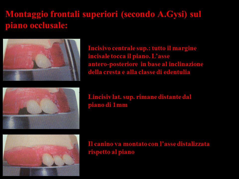 Montaggio frontali superiori (secondo A.Gysi) sul piano occlusale: Incisivo centrale sup.: tutto il margine incisale tocca il piano. Lasse antero-post