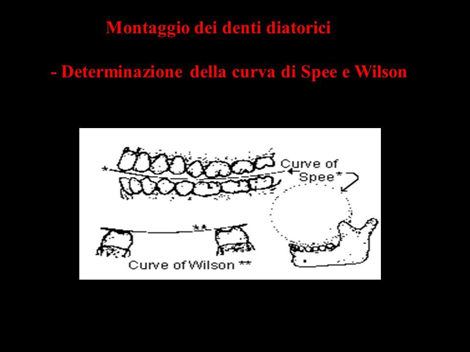 Montaggio dei denti diatorici - Determinazione della curva di Spee e Wilson