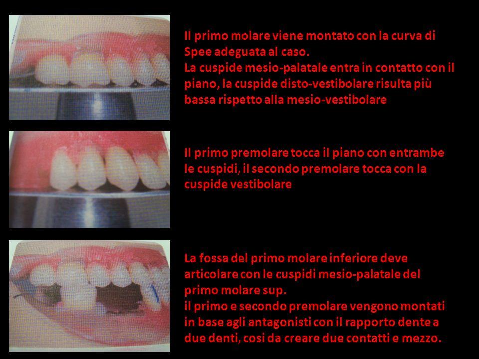 Il primo molare viene montato con la curva di Spee adeguata al caso. La cuspide mesio-palatale entra in contatto con il piano, la cuspide disto-vestib