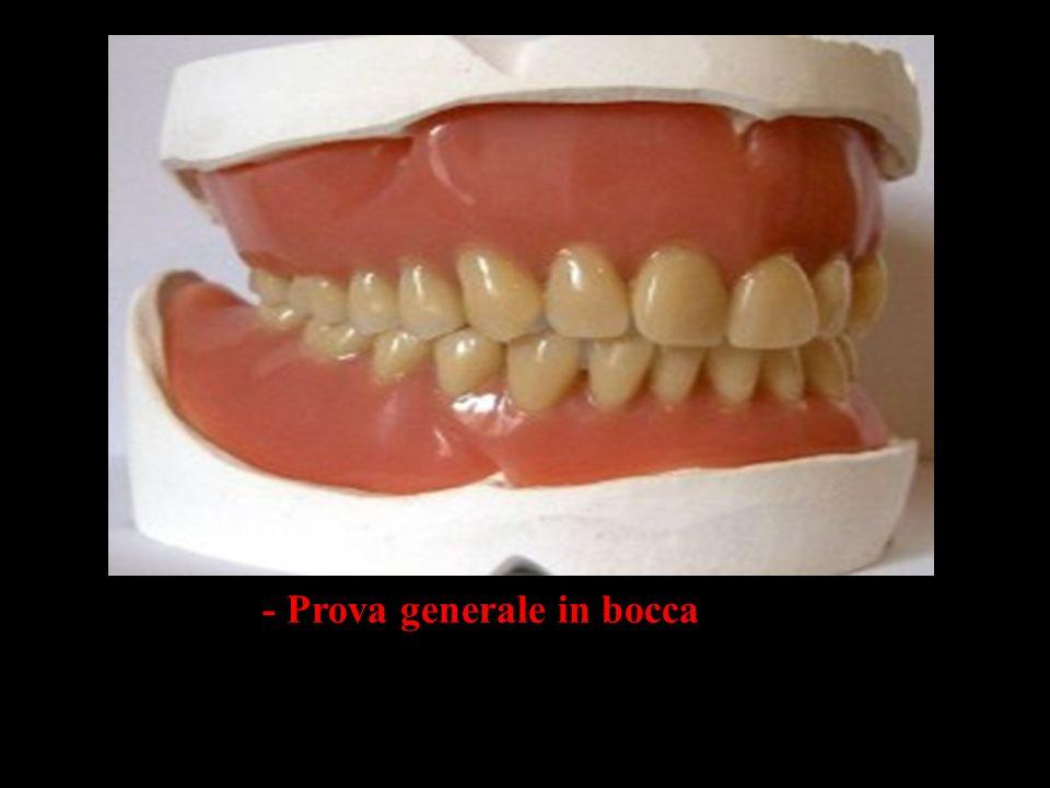 - Prova generale in bocca