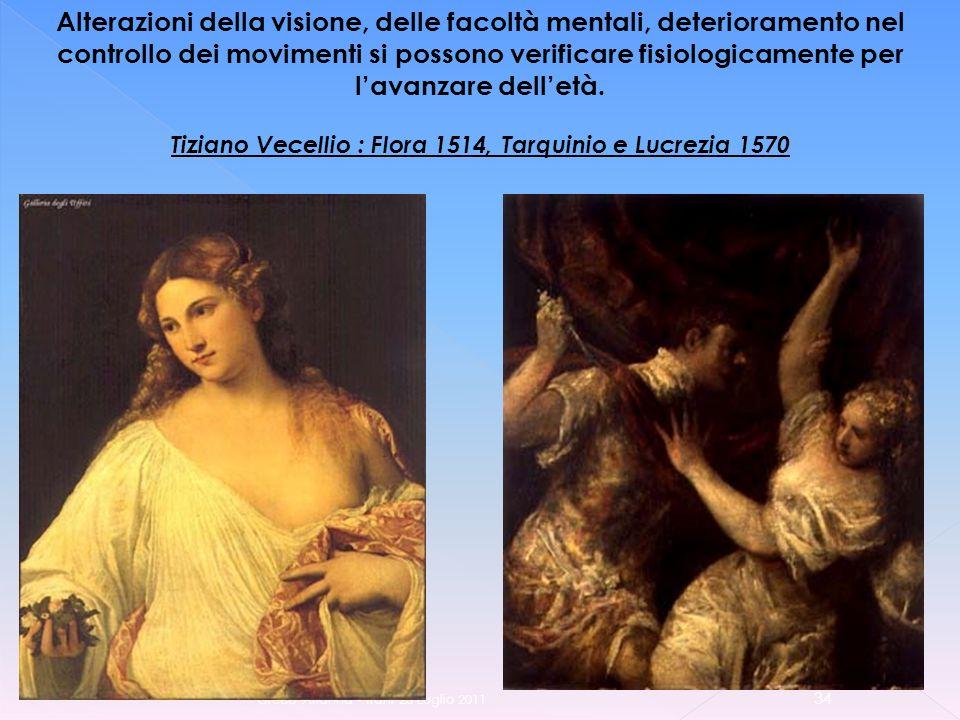 Greco Arianna - Trani 23 Luglio 2011 34 Alterazioni della visione, delle facoltà mentali, deterioramento nel controllo dei movimenti si possono verificare fisiologicamente per lavanzare delletà.