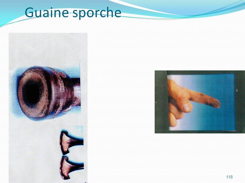 118 Guaine sporche
