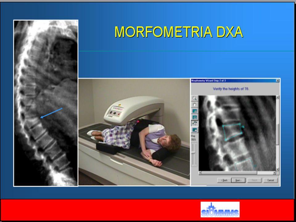 Densitometria a chi .