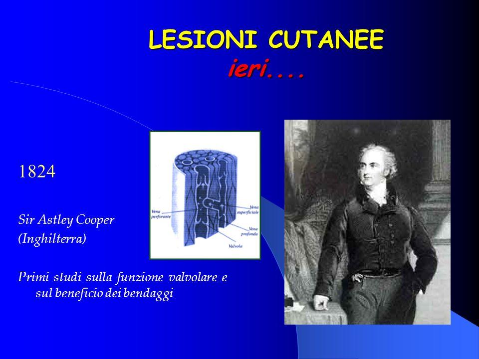 LESIONI CUTANEE ieri.... 1824 Sir Astley Cooper (Inghilterra) Primi studi sulla funzione valvolare e sul beneficio dei bendaggi