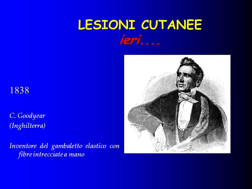 LESIONI CUTANEE ieri.... 1838 C. Goodyear (Inghilterra) Inventore del gambaletto elastico con fibre intrecciate a mano