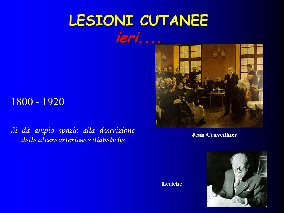Jean Cruveilhier 1800 - 1920 Si dà ampio spazio alla descrizione delle ulcere arteriose e diabetiche Leriche LESIONI CUTANEE ieri....