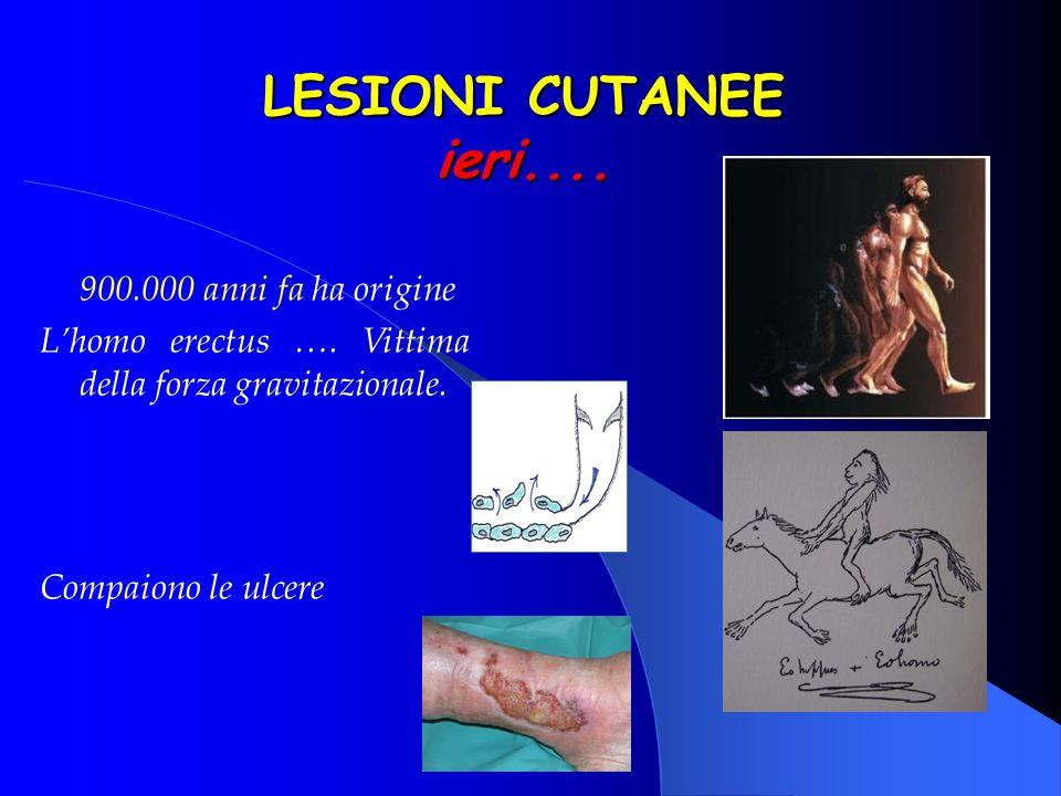 LESIONI CUTANEE ieri.... 900.000 anni fa ha origine Lhomo erectus …. Vittima della forza gravitazionale. Compaiono le ulcere