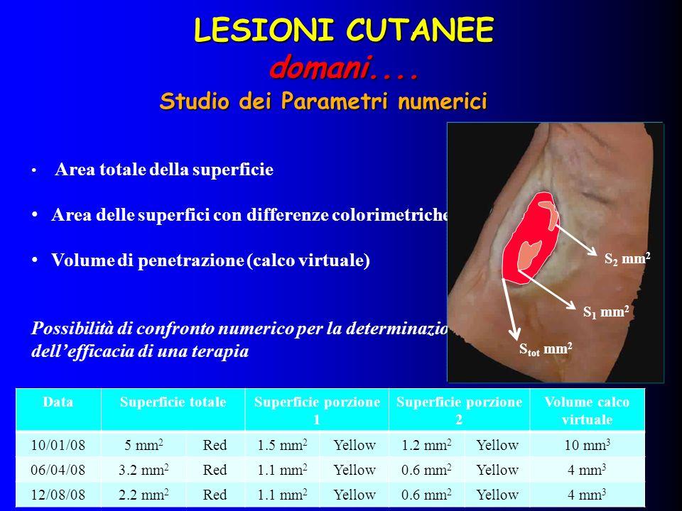 DataSuperficie totaleSuperficie porzione 1 Superficie porzione 2 Volume calco virtuale 110/01/085 mm 2 Red1.5 mm 2 Yellow1.2 mm 2 Yellow10 mm 3 206/04/083.2 mm 2 Red1.1 mm 2 Yellow0.6 mm 2 Yellow4 mm 3 312/08/082.2 mm 2 Red----2.9 mm 3 1 2 3 Confronto numerico LESIONI CUTANEE domani....