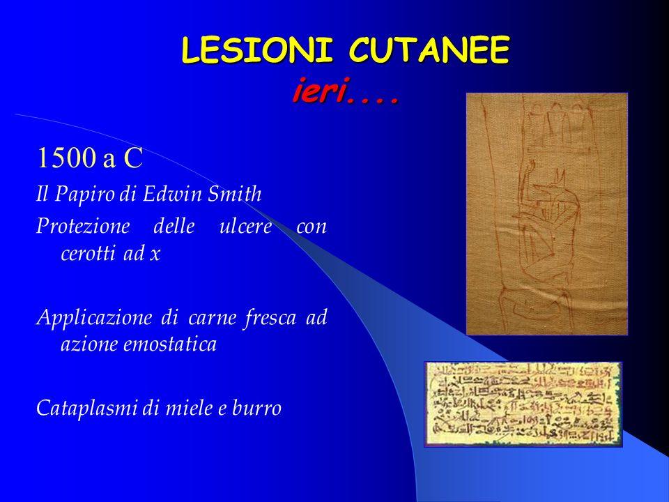 1500 a C Il Papiro di Edwin Smith Protezione delle ulcere con cerotti ad x Applicazione di carne fresca ad azione emostatica Cataplasmi di miele e bur