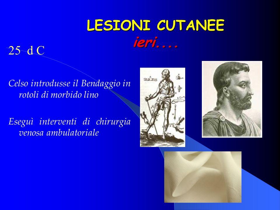 25 d C Celso introdusse il Bendaggio in rotoli di morbido lino Eseguì interventi di chirurgia venosa ambulatoriale LESIONI CUTANEE ieri....