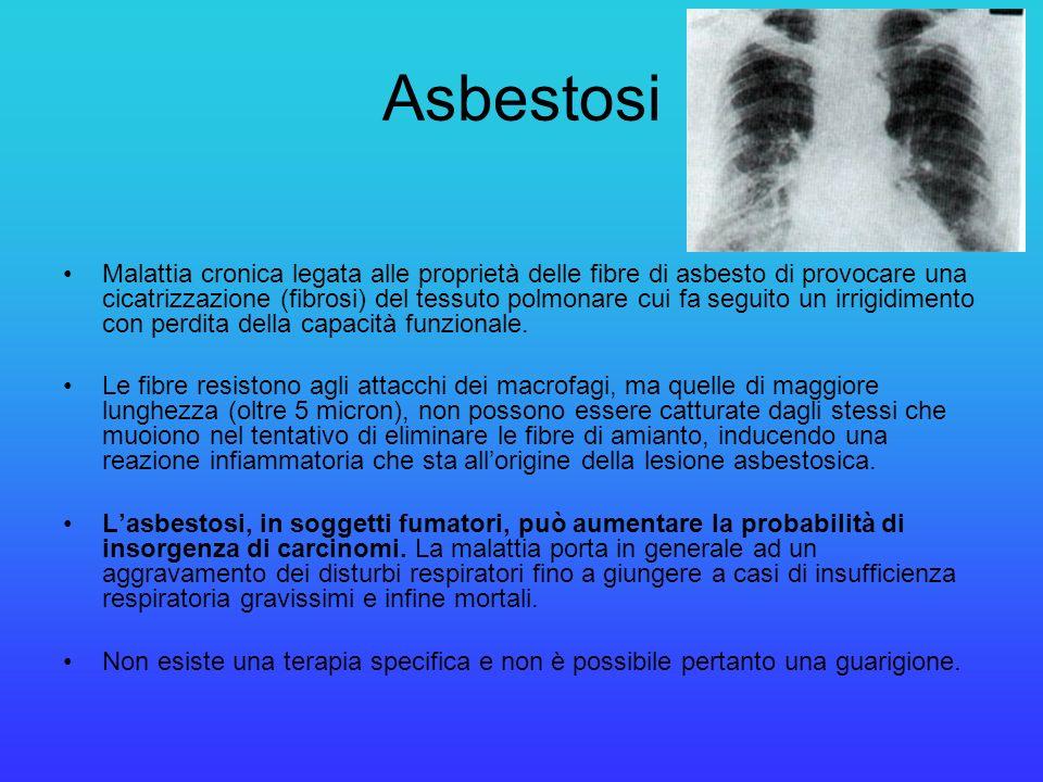 Asbestosi Malattia cronica legata alle proprietà delle fibre di asbesto di provocare una cicatrizzazione (fibrosi) del tessuto polmonare cui fa seguit